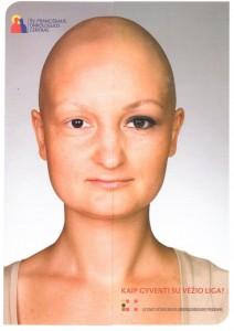 Kaip gyventi su vėžio