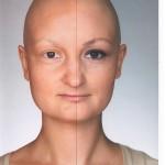 Kaip gyventi su vėžio liga